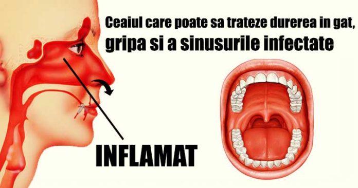tratamentul durerilor de gât)